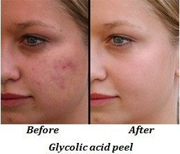 Glycolic acid peel (before and after)